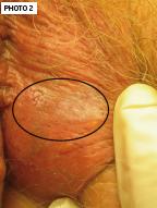 Maladie de paget vulvaire (MPV) – REVUE GENESIS