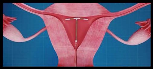 Schéma représentant un DIU dans la cavité utérine