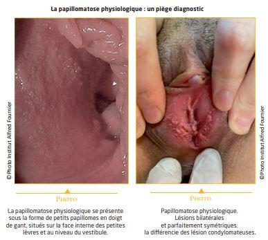 papillomavirus condylome