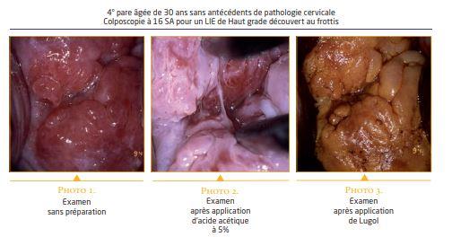 papillomavirus chez une femme enceinte