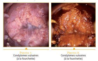 Papillomavirus apres grossesse